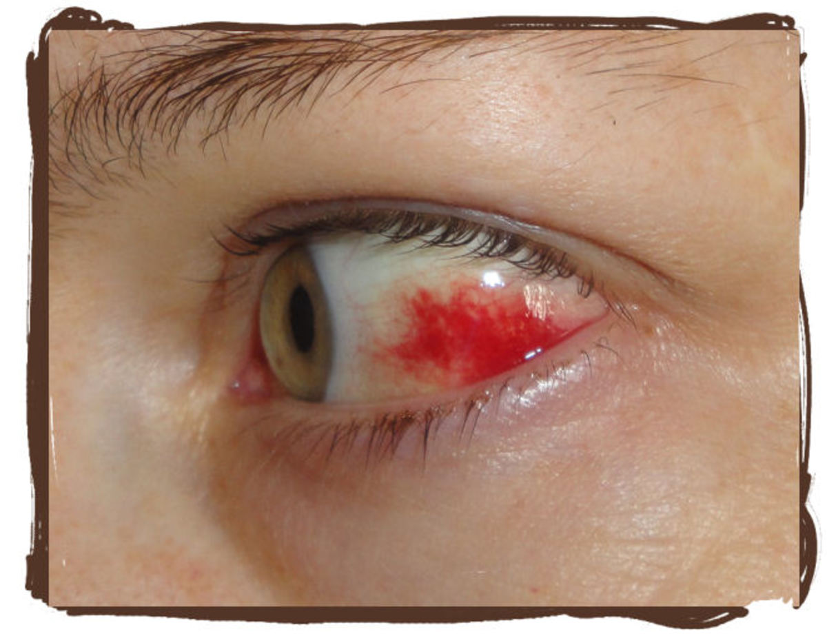 Why Did My Eye Turn Red? Subconjuctival Hemorrhage