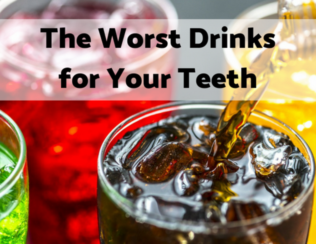 Soda is not the only drink that's bad for your teeth.