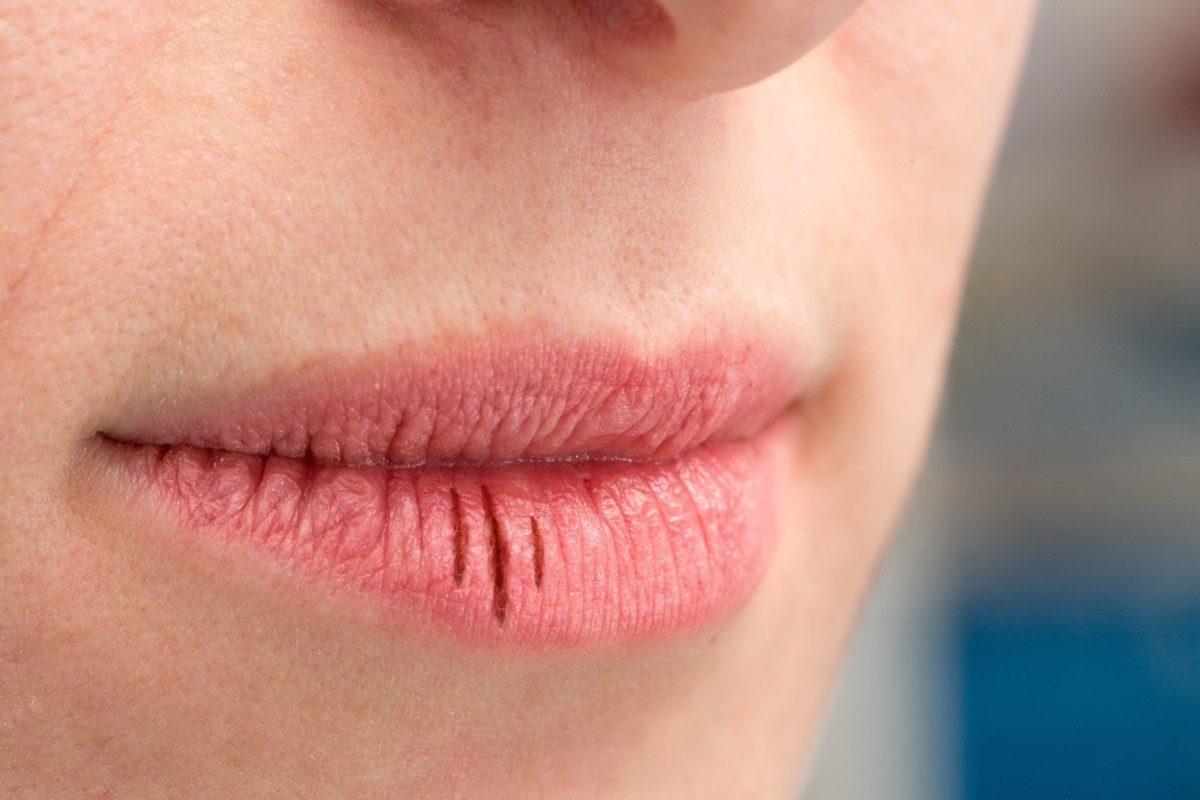 Dry Mouth: Causes and Remedies