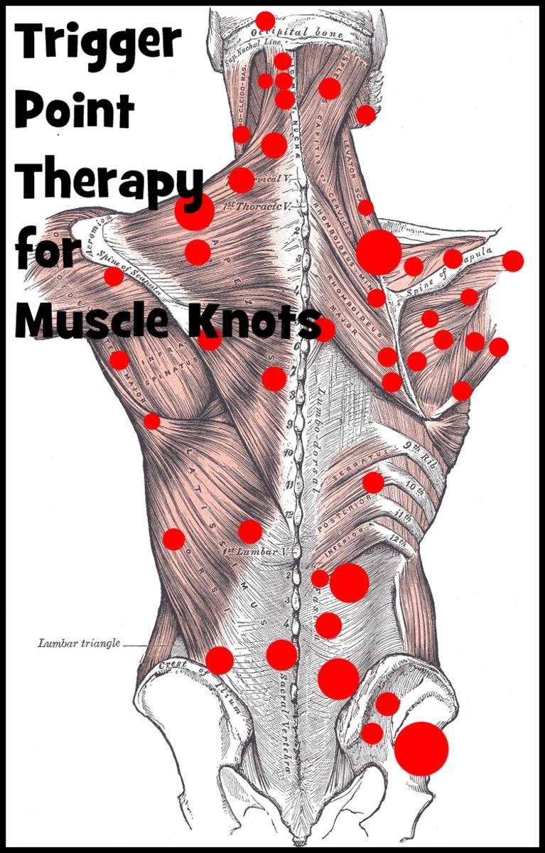 How to Treat Muscle Knots Without Expensive Therapy? Muscle knots develop when a muscle is injured or over-worked over a long period of time. Read on to find out how you can treat muscle knots on your own without expensive therapy.