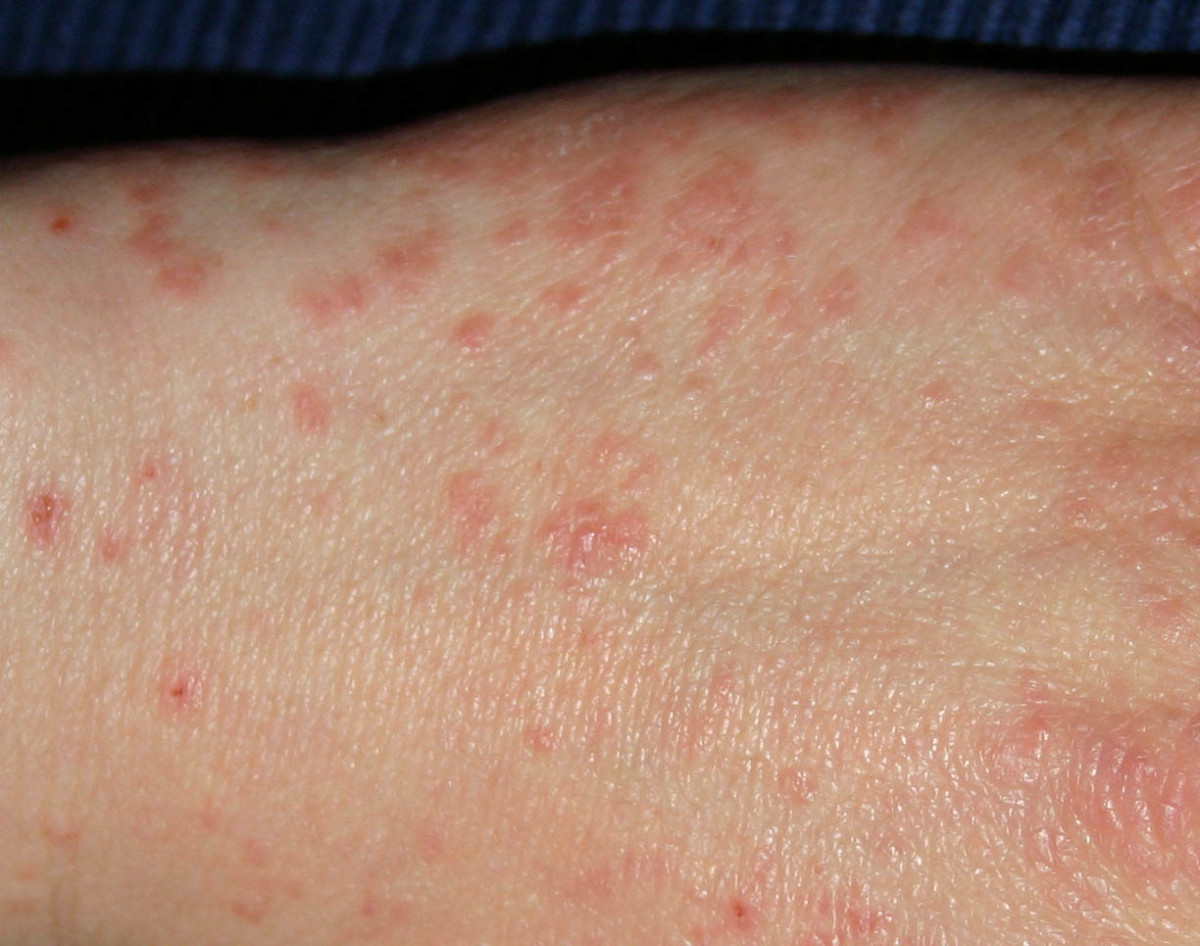 Atypical Scabies Symptoms: Unusual Symptoms of Mites Doctors Don't Recognize