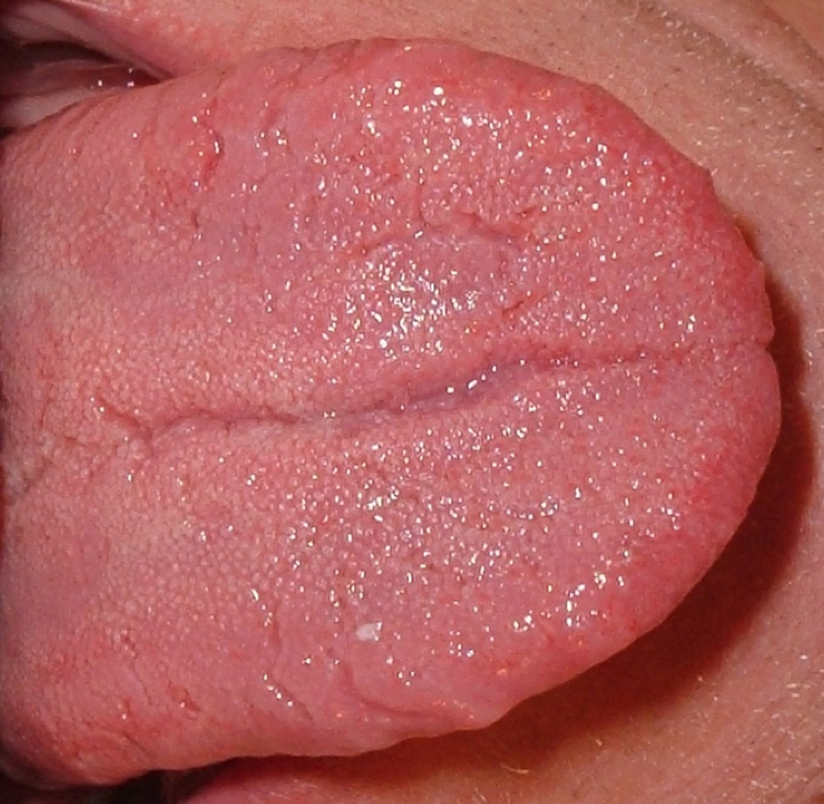 Swollen Tongue: A Painful and Possibly Dangerous Health Problem