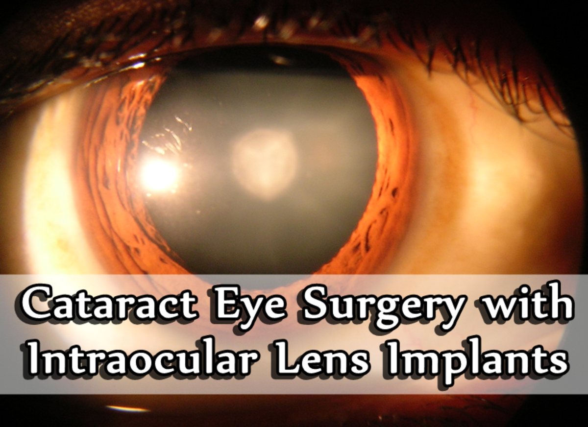 Cataract Eye Surgery With Intraocular Lens Implants