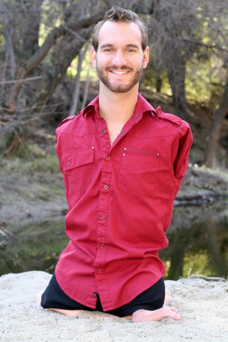 Nick Vujicic: No Limbs And No Limits (An Inspirational Story)
