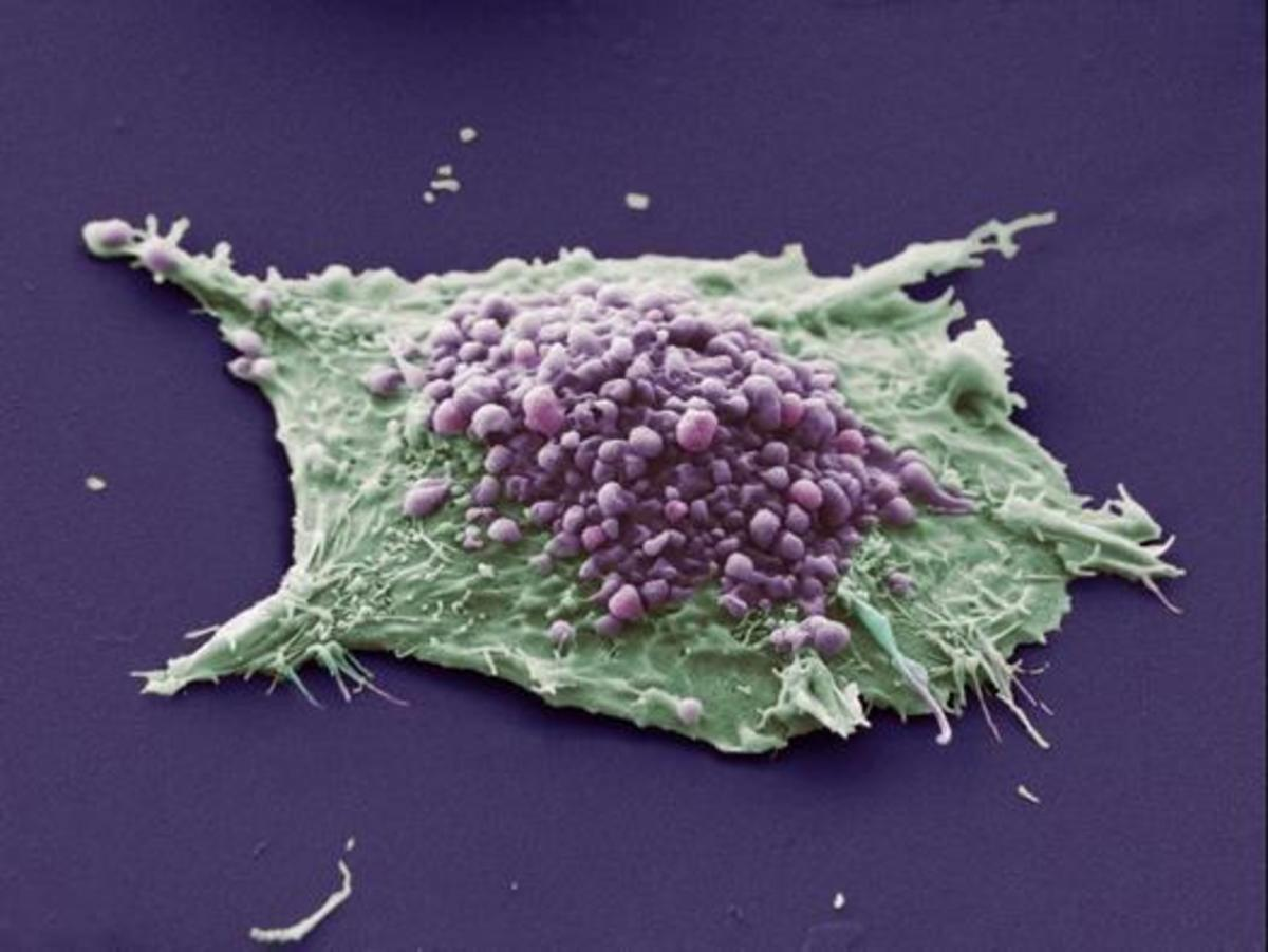 A fake-colour image of a blebbing cancer cell. The jagged edges show the cell is cancerous. Blebbing can be seen in purple. Each bleb will fall away (hence 'apoptosis') and be consumed by white blood cells