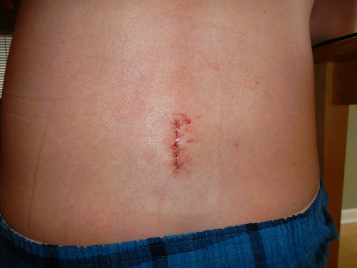 Incision slightly to the left of the spine, about 48 hours after microdiscectomy surgery.