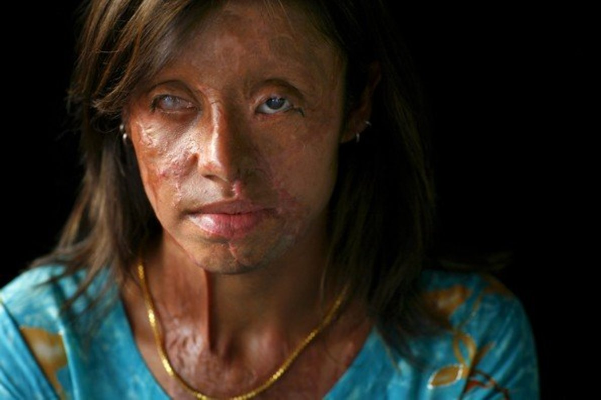 This Pakistani woman was blinded and scarred from an acid attack when her family could not pay her dowry. Many other women suffer worse disfigurment.