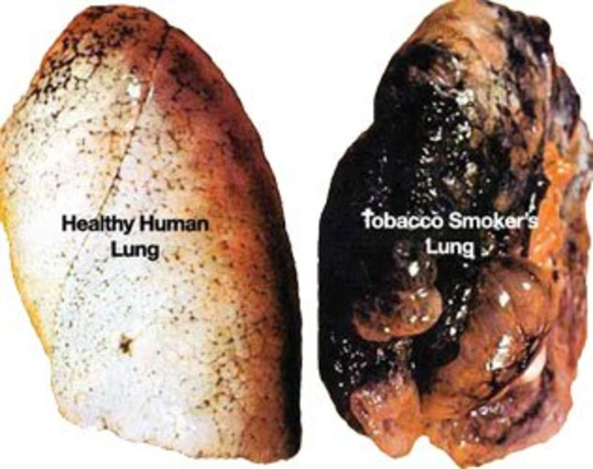 Long Term Negative Side Effects of Quitting Tobacco They Will Not Tell You About