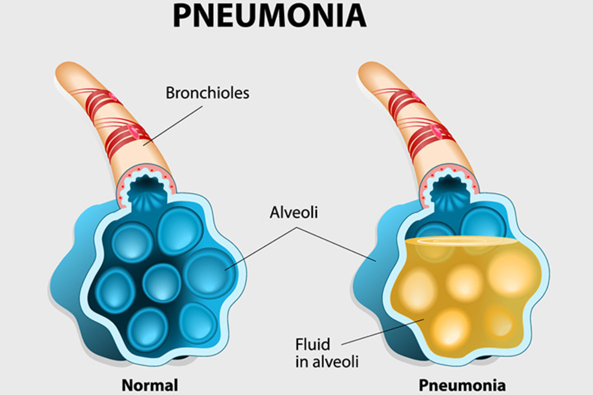 Home Remedies for Bronchitis and Pneumonia—Know the Difference