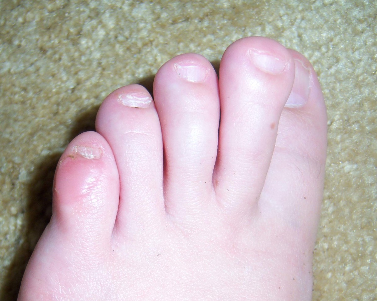 A blister formed by wearing the wrong type of shoes during a lengthy walk.