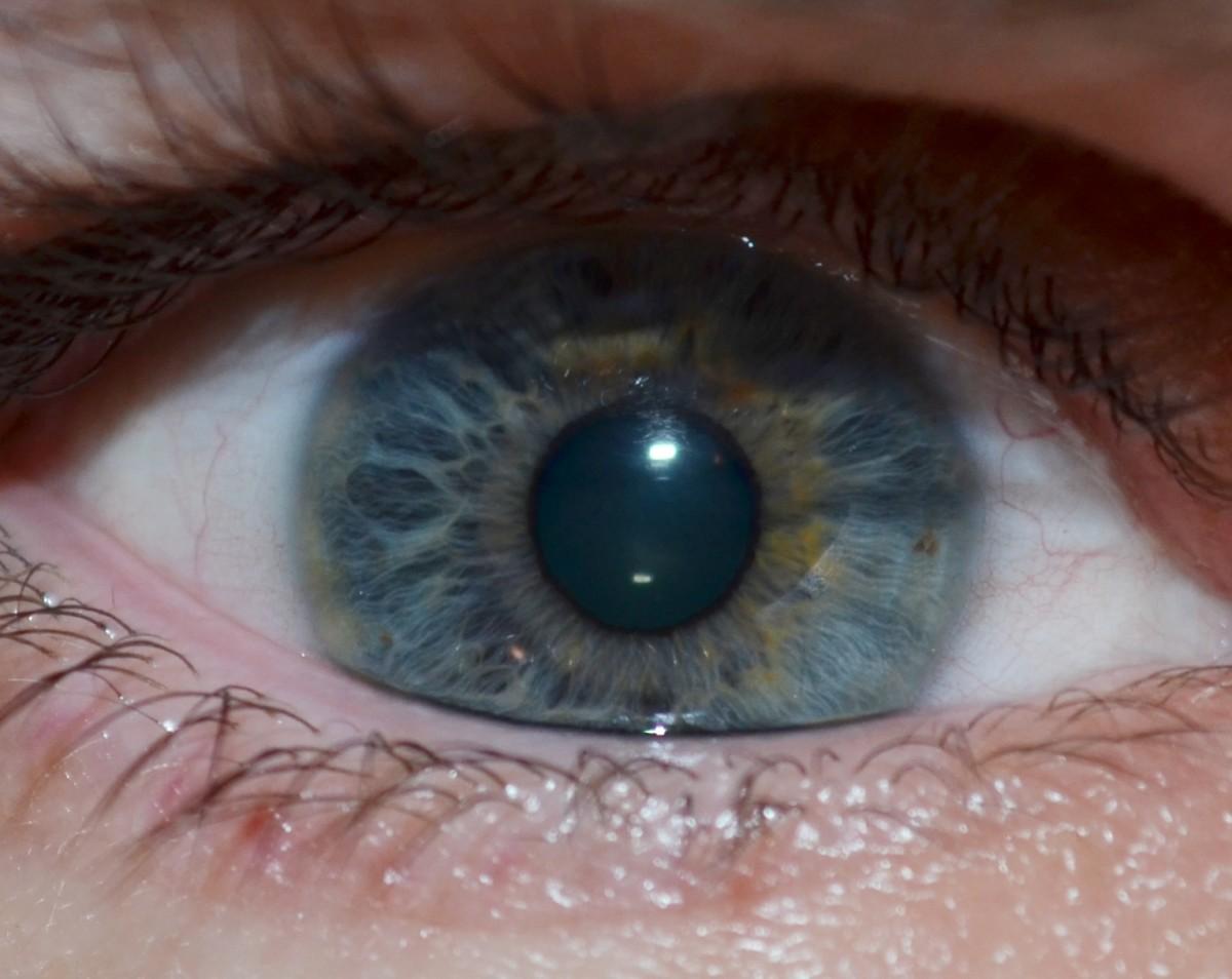 A normal eye