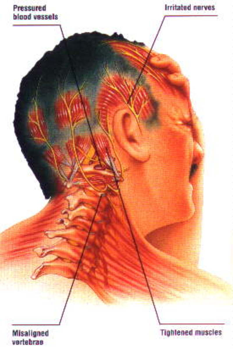 Is Your Neck Or Spine Out Of Alignment  It May Be Causing