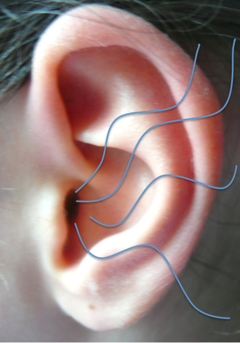 How to Cope With Tinnitus: My Experience