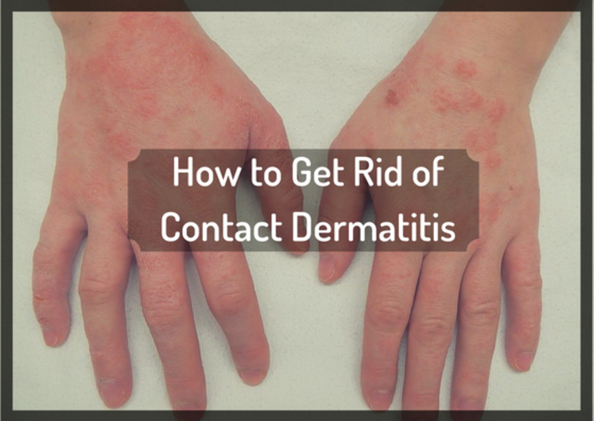 getting-rid-of-itchy-contact-dermatitis-the-natural-way-without-prescription-drugs