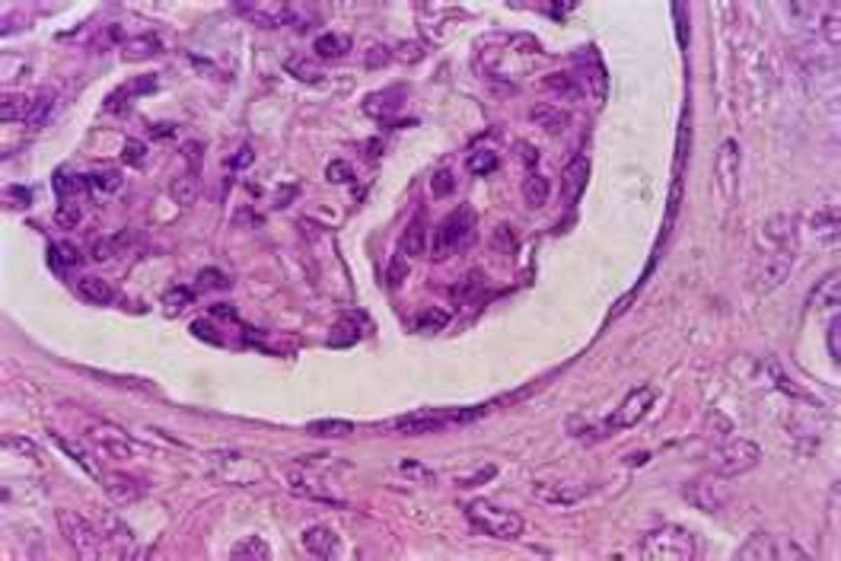 What Goes on in an Histology Lab and What Does This Work Mean to Me as a Patient?