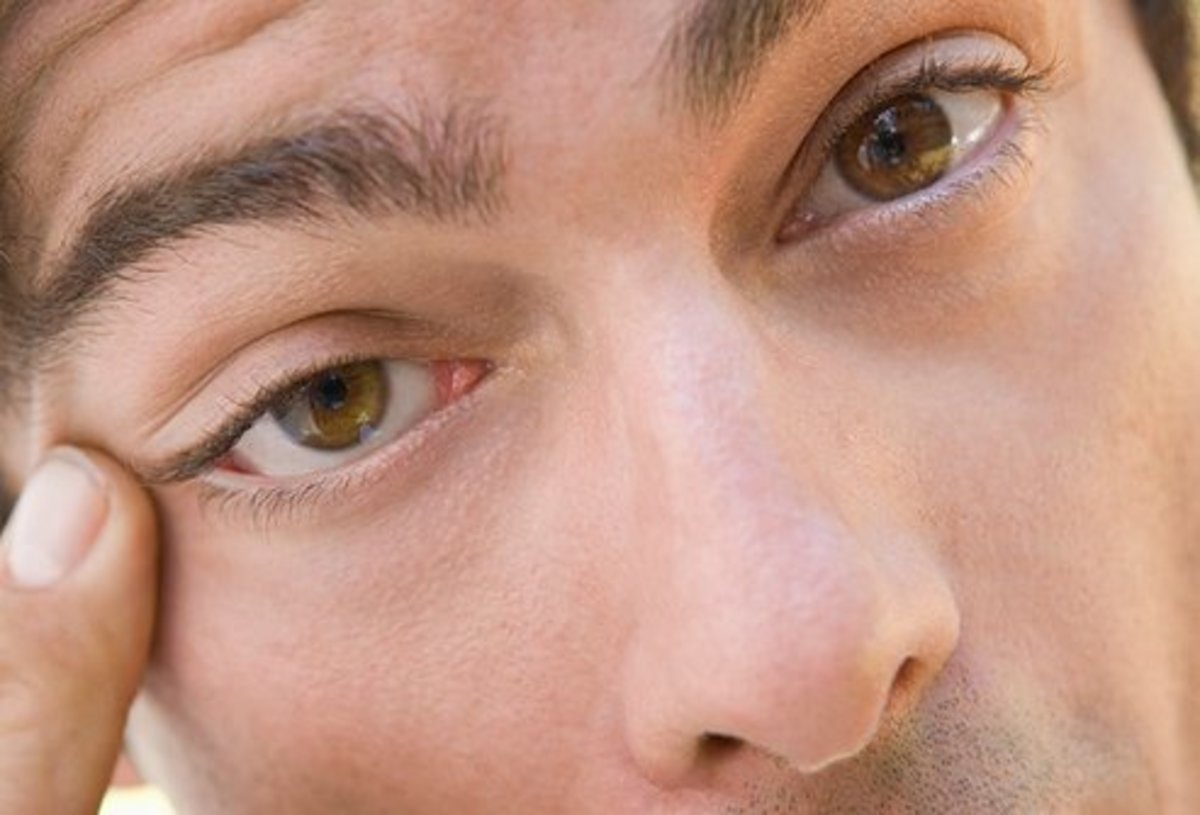 Why Is My Eye Twitching? Eyelid Myokymia and Blepharospasm