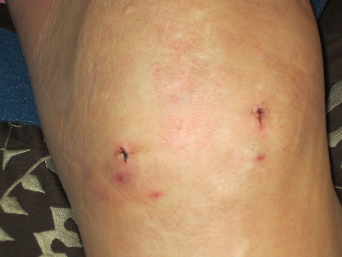 Swelling, bruising and scope holes visible after knee meniscus removal.