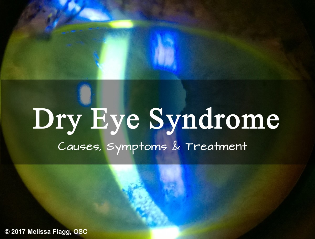 Symptoms, Causes, and Treatment for Severe Dry Eye Syndrome