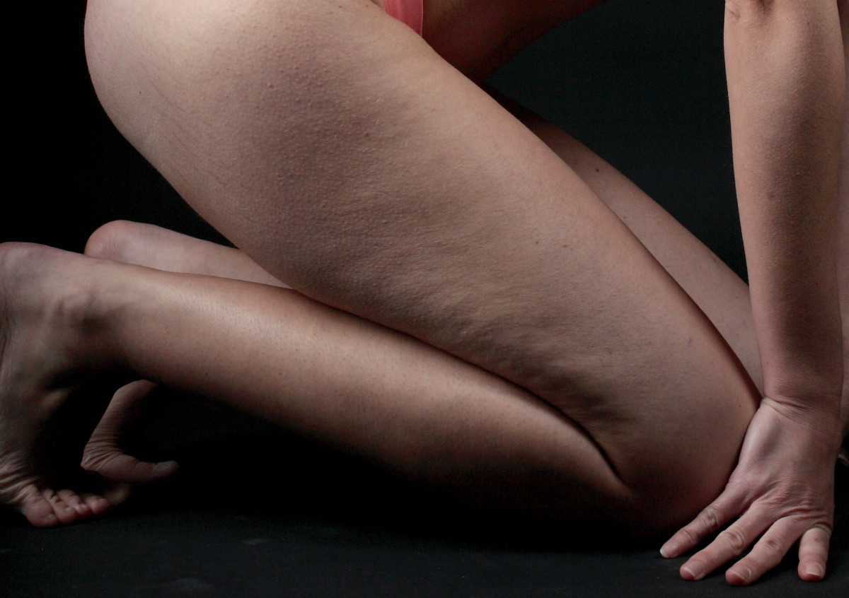 Essential Oils That Help Reduce Cellulite Bellatory Fashion And Beauty