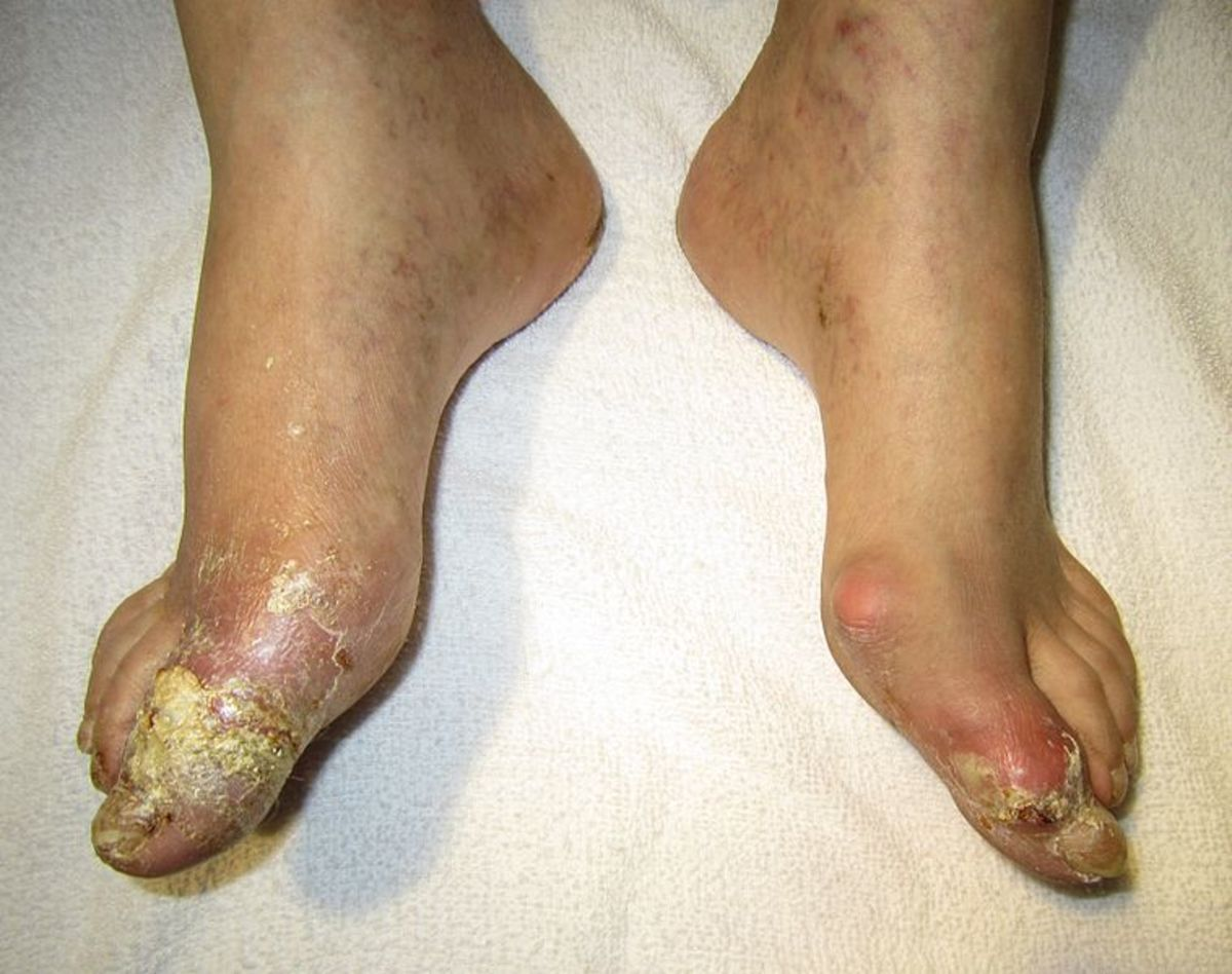 Here you can see a person with bad gout in the feet. Notice how the feet are swollen. The condition is really bad in the big toe.