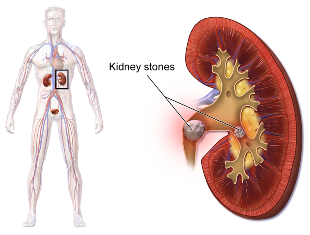Prevention Advice I've Learned After I Lost My Kidney to a Staghorn Kidney Stone