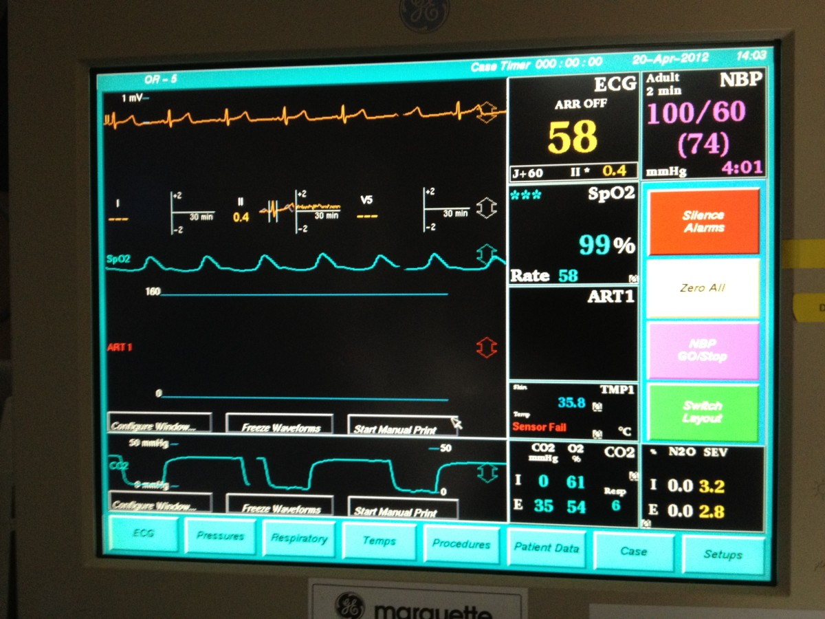 Heart rate and rhythm are monitored during anesthesia. The overall function of the cardiovascular system is also indicated by the blood pressure and oxygen level on the monitor.