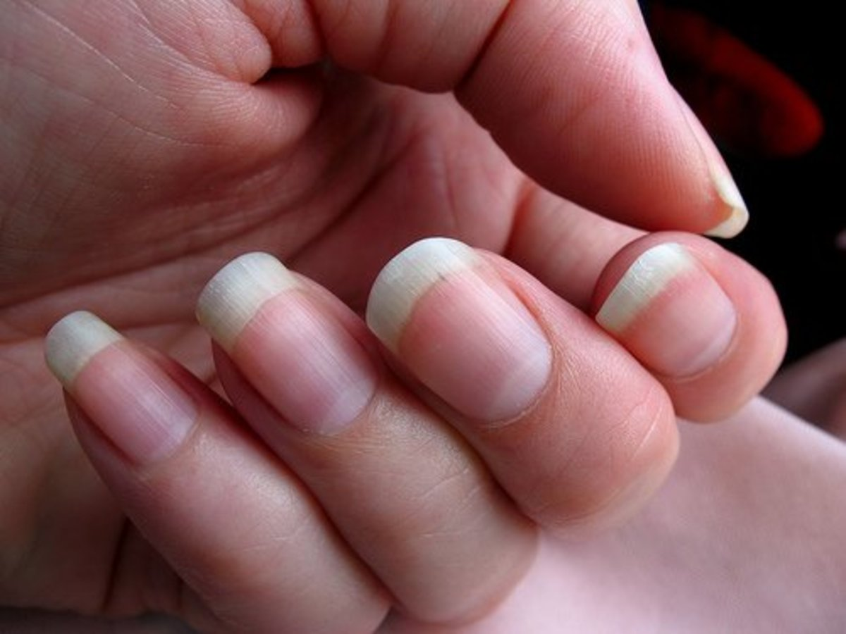 A little time each day spent manicuring can help people who bite their nails.