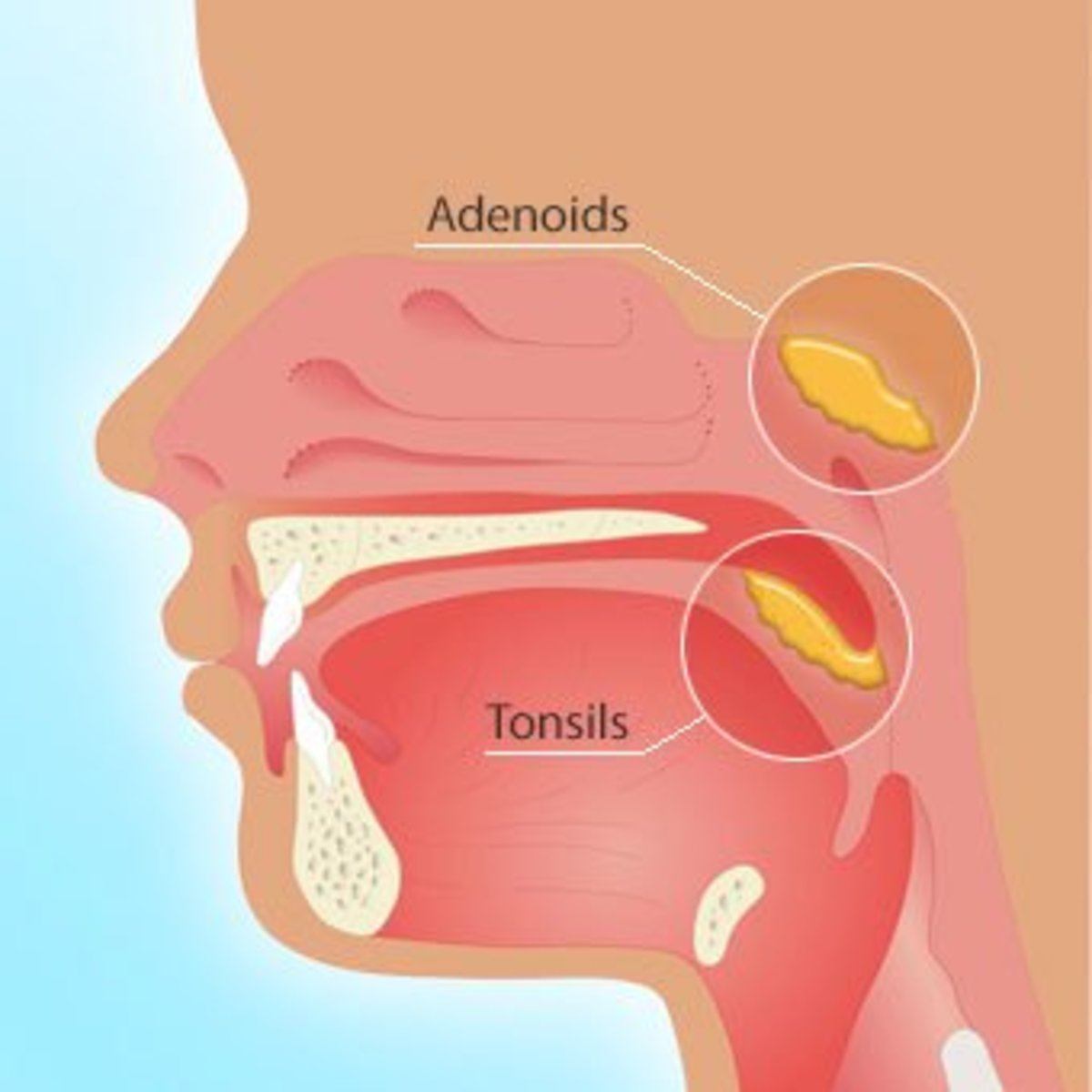 Signs And Symptoms: Does My Child Need Their Tonsils And Adenoids Removed?