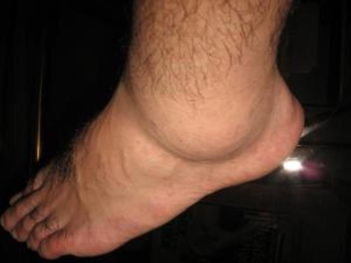 Leg Swelling (Edema) in the Elderly: Causes and Treatment