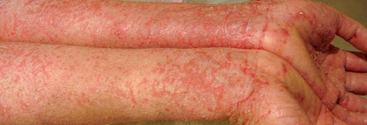 Red, scaly patches of eczema cover hands and arms, demonstrating how severe eczema can get.