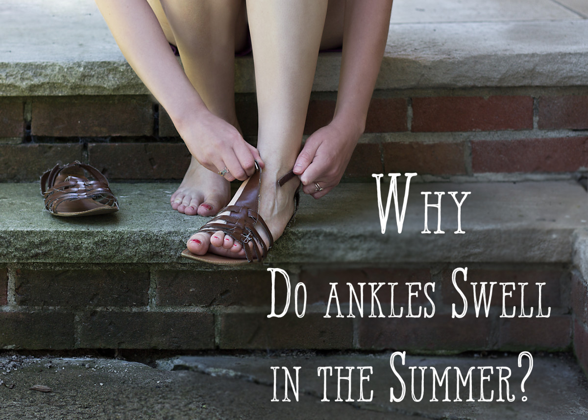 Why Do Ankles Swell in Hot Weather? Prevention and Treatment