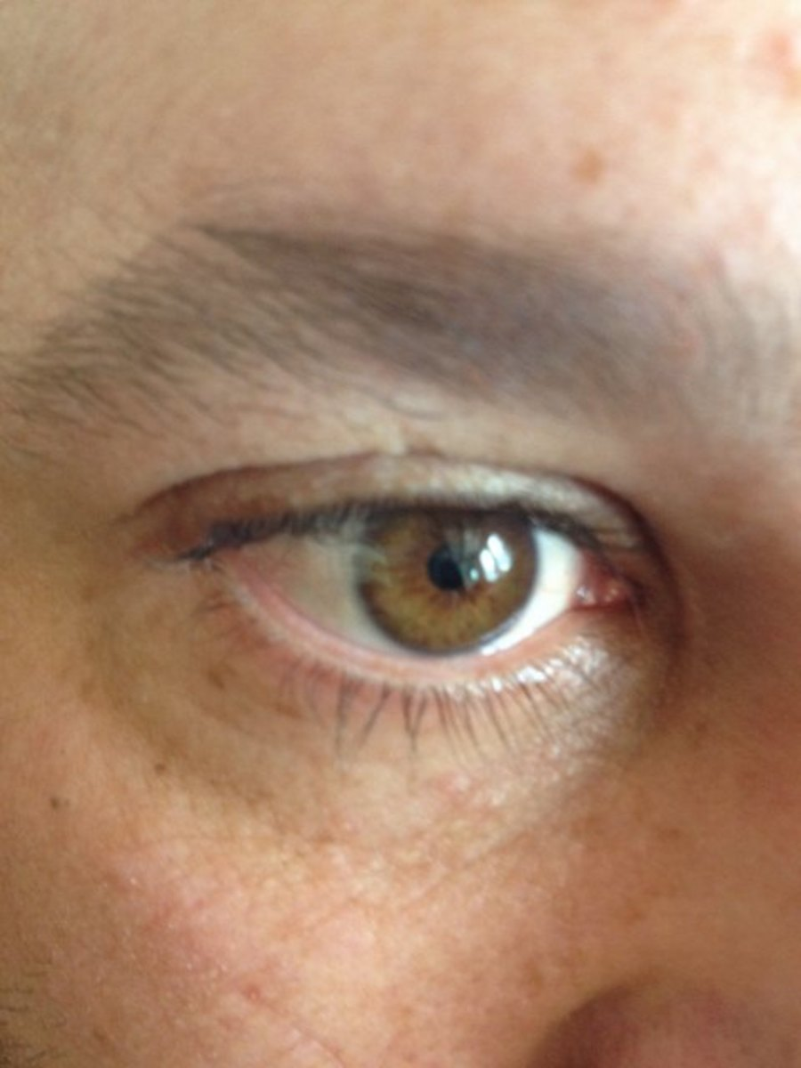 Losing My Eyesight to MacTel (Juxtafoveal telangiectasia.) My Camera Shows Me Much More Than My Eyes.