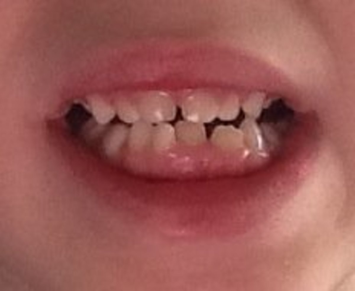 My son's mouth was too small for the adult teeth to come in properly. A lateral incisor and both canines needed to be pulled out.