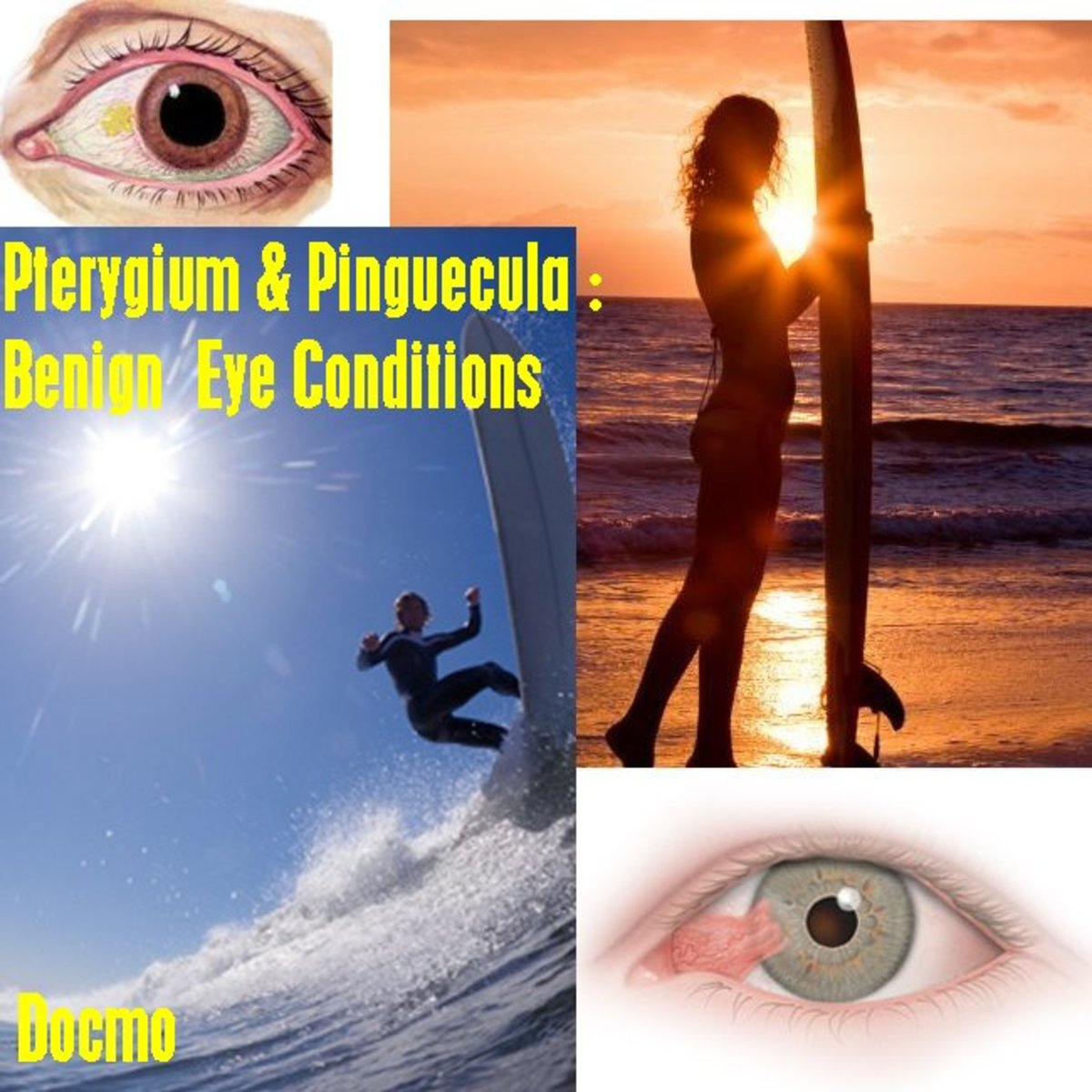 What is Surfer's Eye - Pterygium and Pinguecula