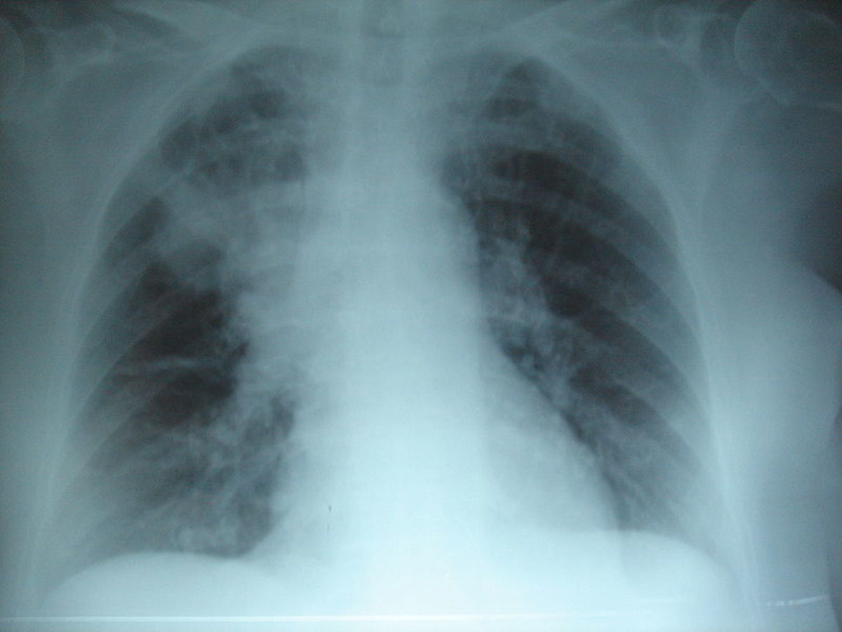 Aspiration pneumonia is visible on a chest x-ray (although not always right away).