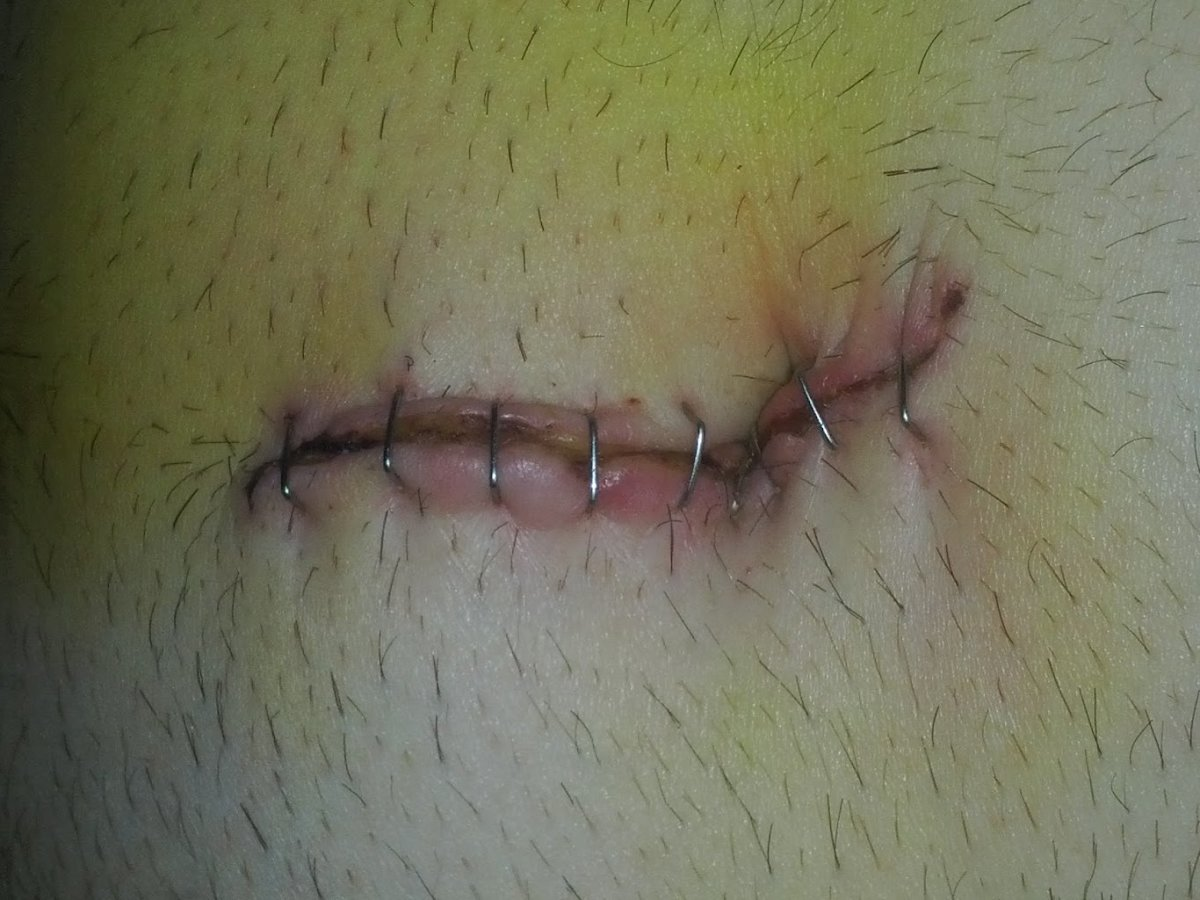 This is what my navel incision looked like after laparoscopic surgery with staples.
