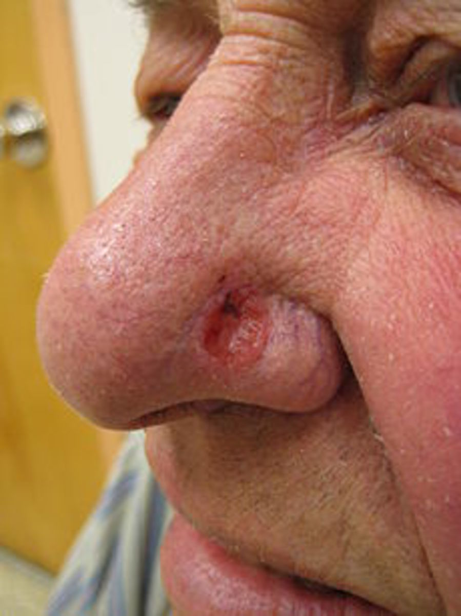 The Mohs Procedure Used to Remove My Basal Cell Carcinoma