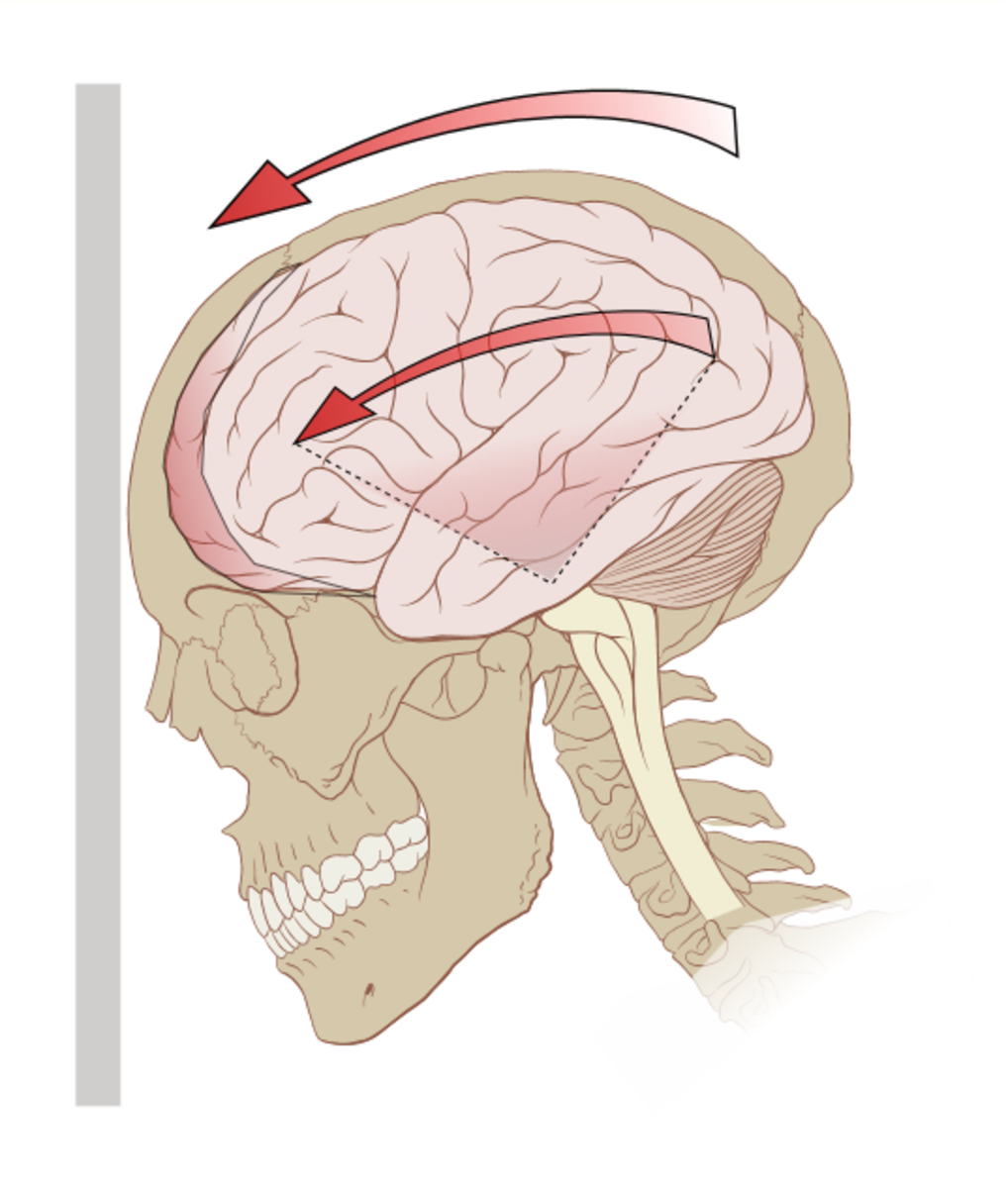 A illustration of the forces on the brain in concussion