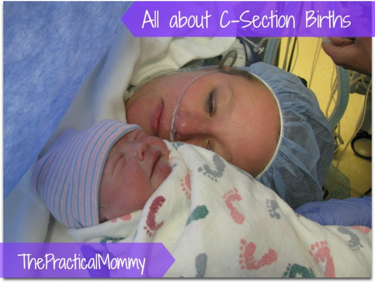 How to Prepare for a C-Section