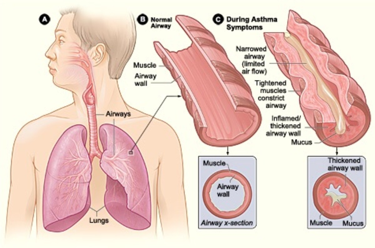Changes in the airways during an asthma attack