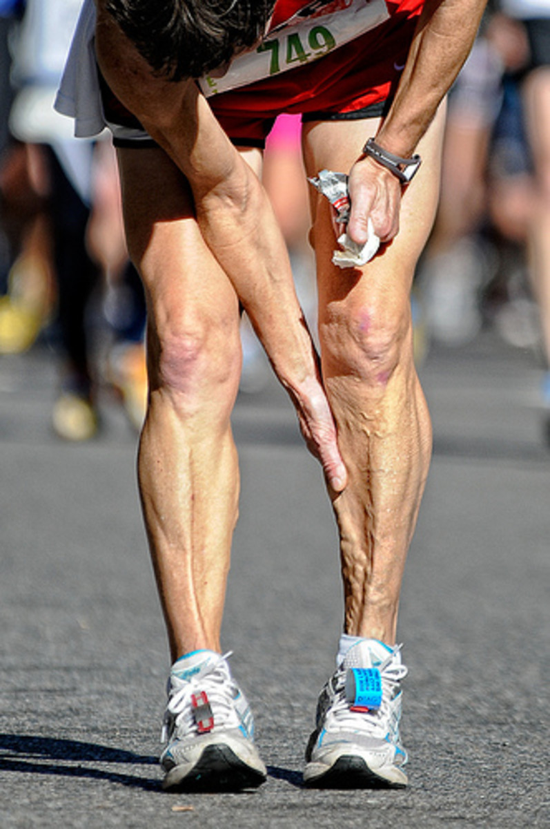 Calf pain can be a runner's worst nightmare