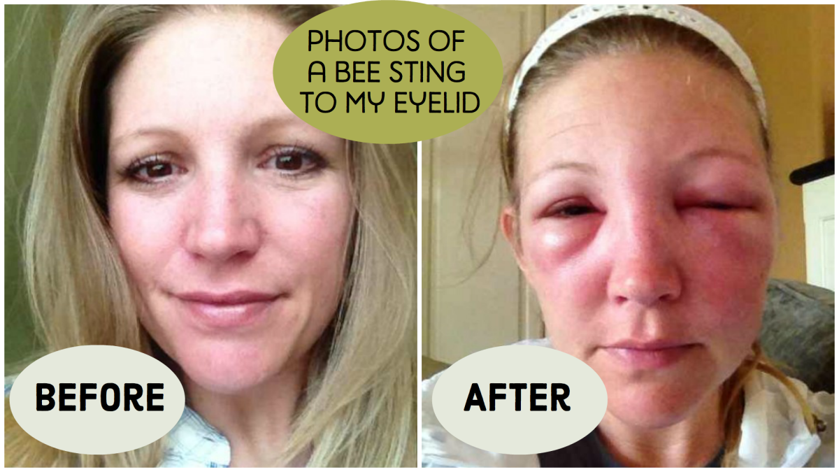 Treatments for a Bee Sting by Eye With a Photo Progression