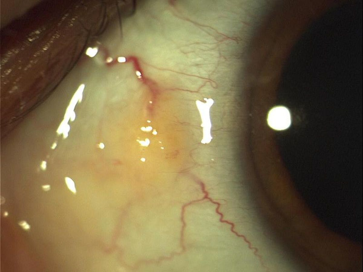A pinguecula can make a person's eyes look less attractive.