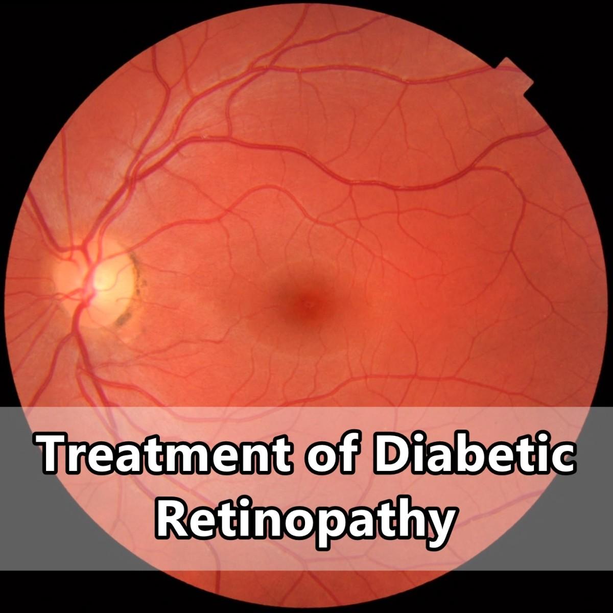 A normal retina