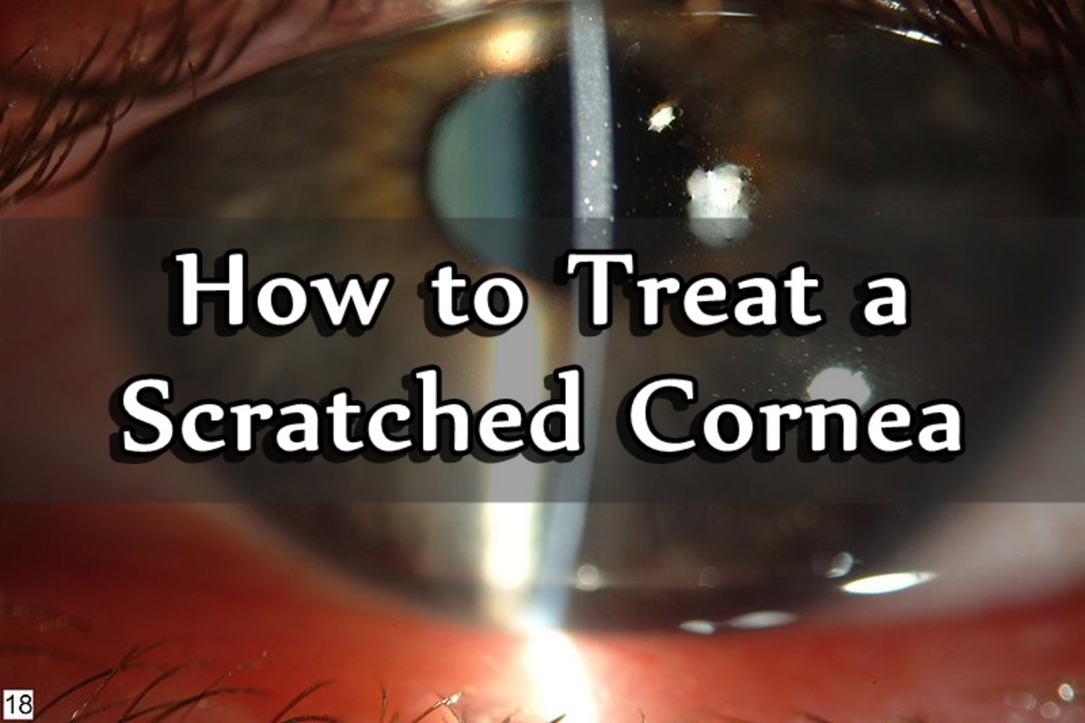 How to Treat a Scratched Cornea