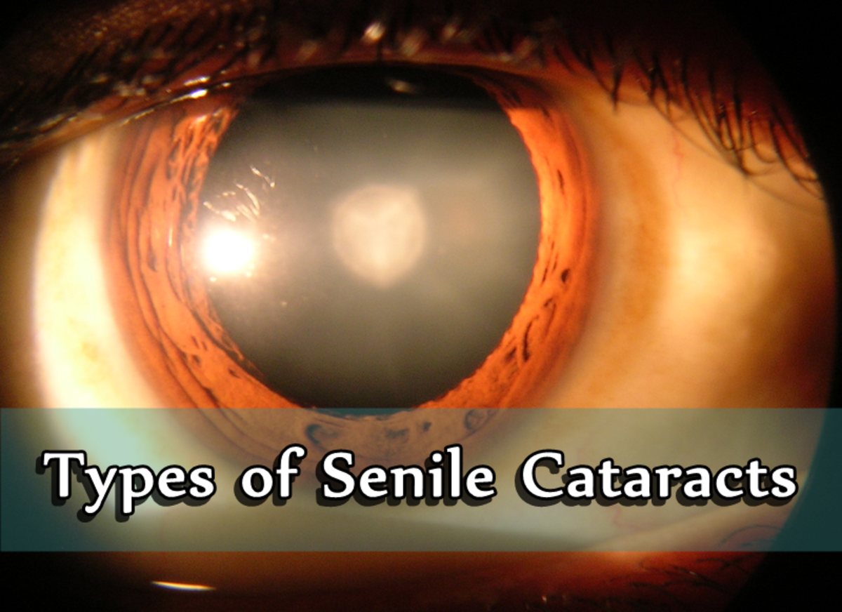 A nuclear sclerotic cataract