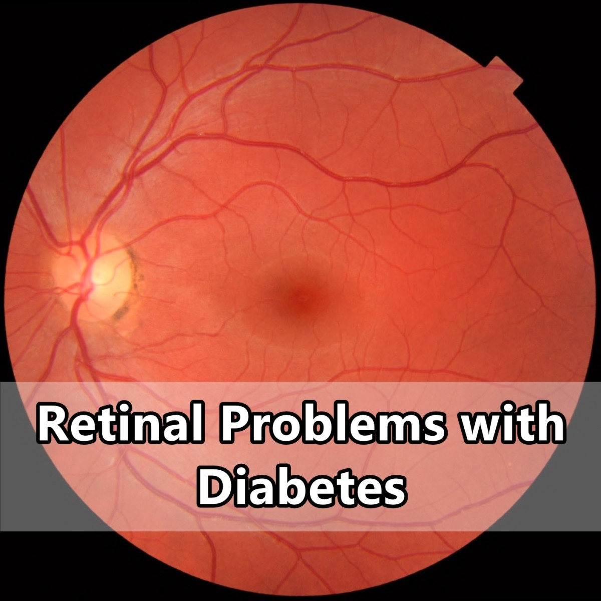 Retinal Problems with Diabetes