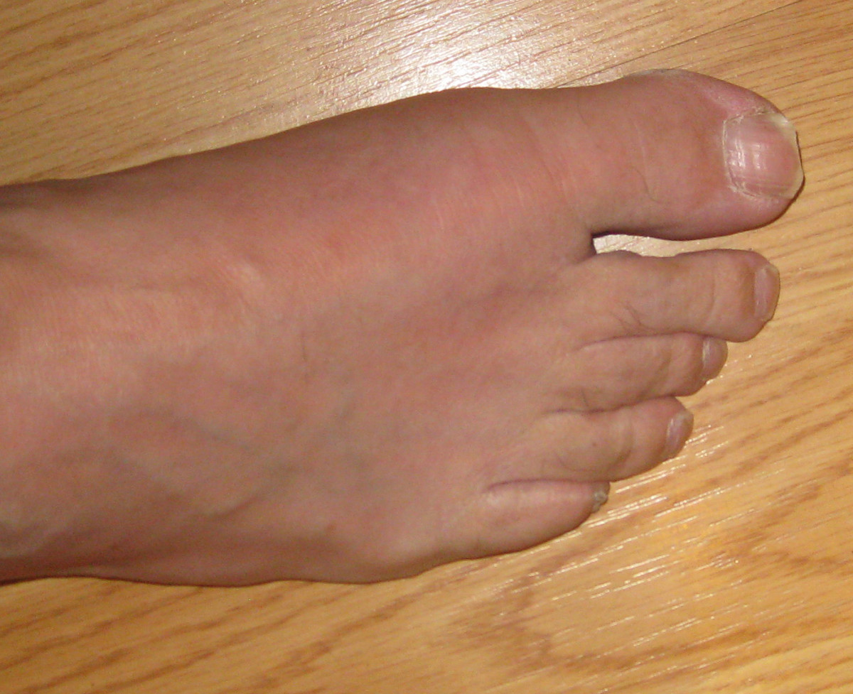 how to help gout in foot