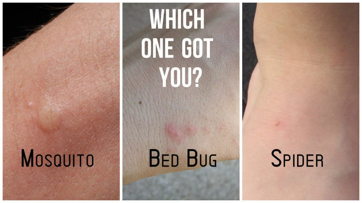 Mosquito and Spider Bites Versus Bed Bug Bites