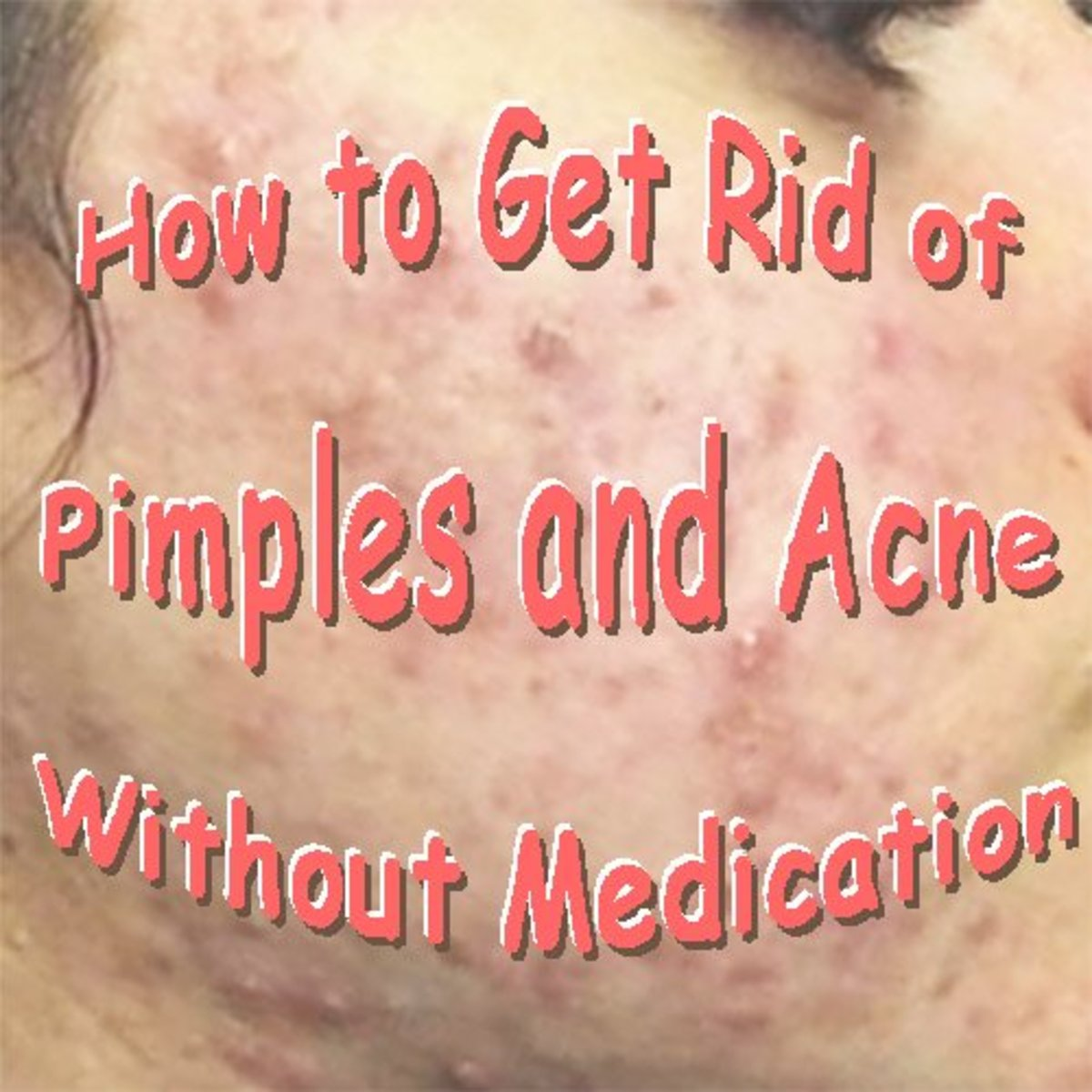 How to Get Rid of Pimples and Acne Without Medication